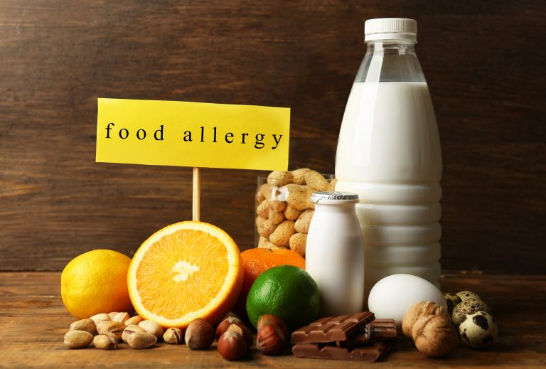 various food allergy items
